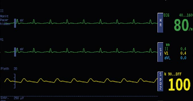 Telemetry Screen of Patient Monitor